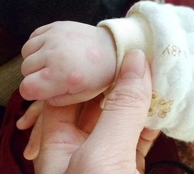 市疾控中心发布六月健康提示 需重点关注手足口病等