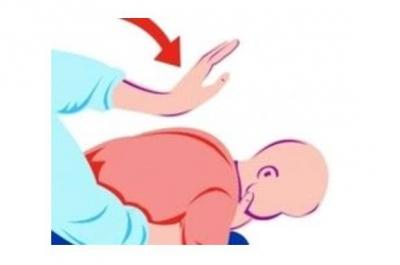 一岁宝宝糖果卡喉险窒息  红十字救护师出手化险为夷