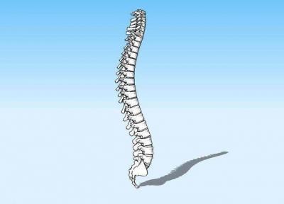 轻度脊柱侧弯要当心