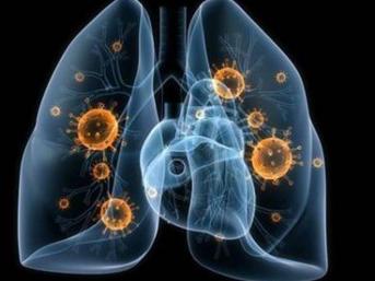 世卫组织:中国以外新冠肺炎确诊病例332331例